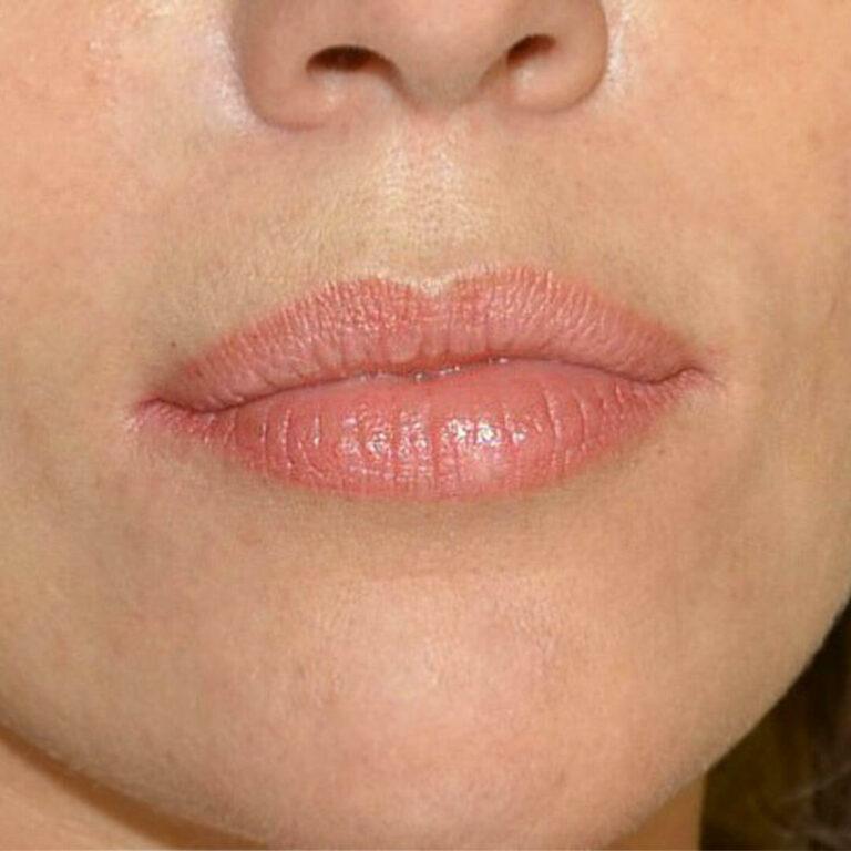 Зажившие губы 2 года